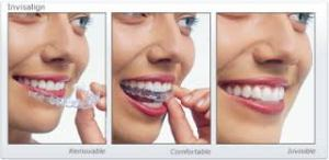 Should You Get Invisalign or Traditional Braces